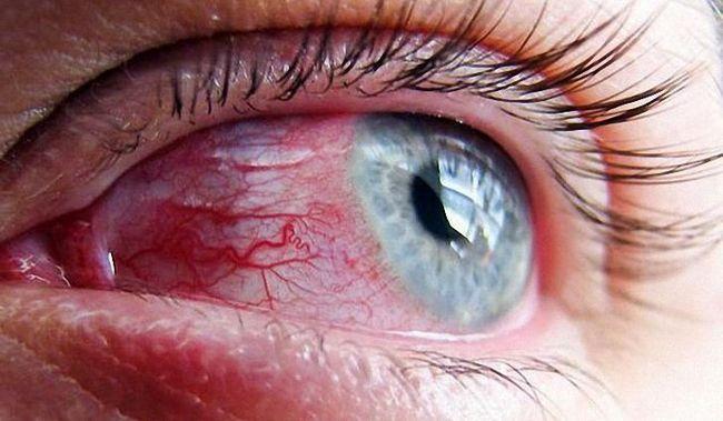 Как сделать чтобы в глазу лопнули сосуды