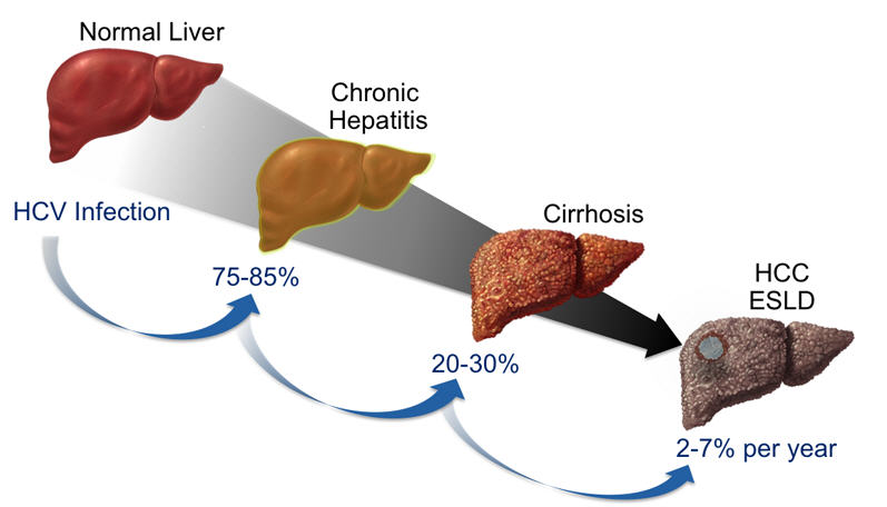 Оперативное лечение гемангиом печени
