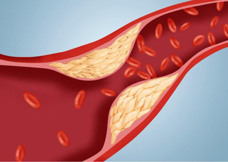 холестерин повышенный причины и снижение его