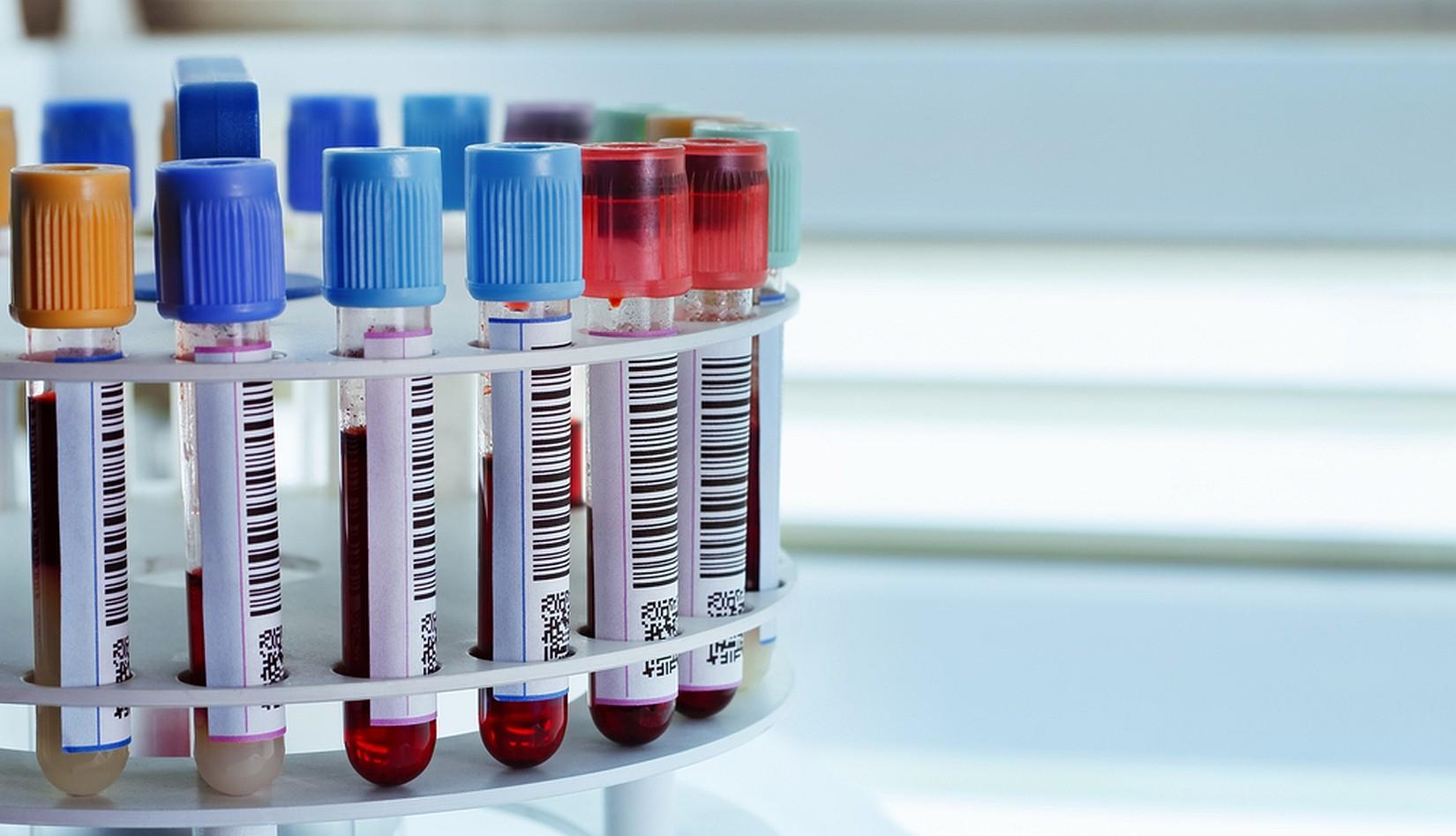 анализ крови повышенный холестерин общий