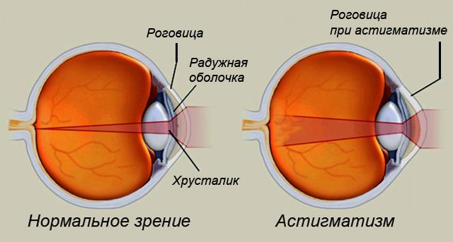 10 упражнений для восстановления зрения