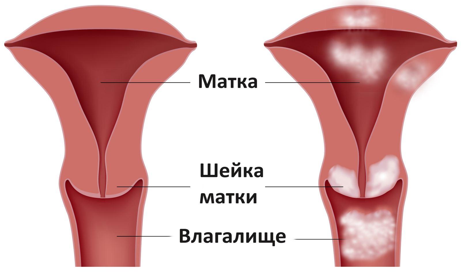 причины запаха изо рта у взрослых желудок