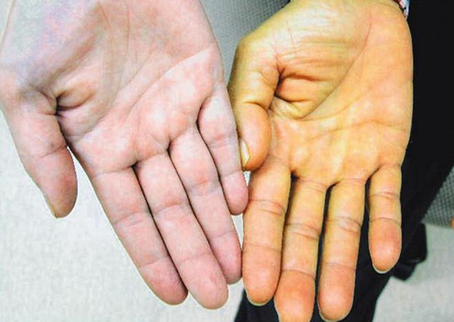при передается ли гепатит с через коррекцию ногтей Норд можно