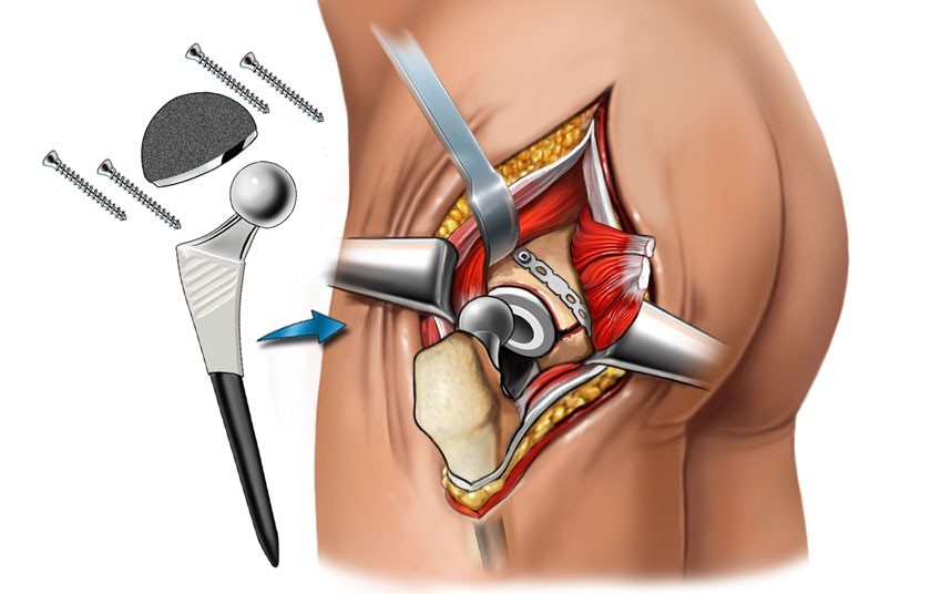 Изображение - Симптомы закрытых повреждений суставов 1468815651_img_4771