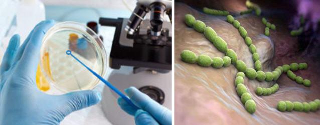 определение бактерий в урогенитальном соскобе