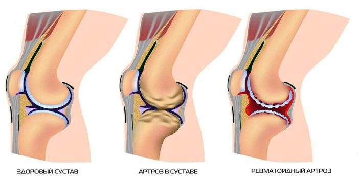 Артроз коленных суставов и тазобедренного лечение