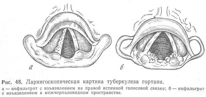 Туберкулез гортани - стадии развития, методы лечения