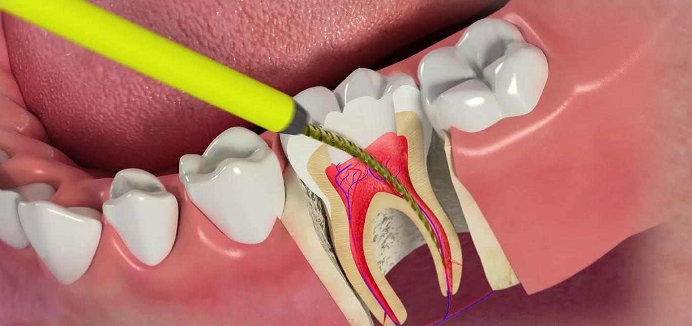 Народная медицина больному зубу изпит по социална медицина