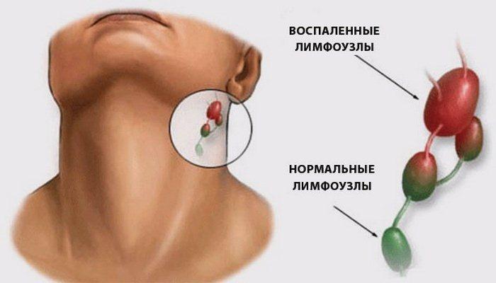 лимфоузлы за ушами