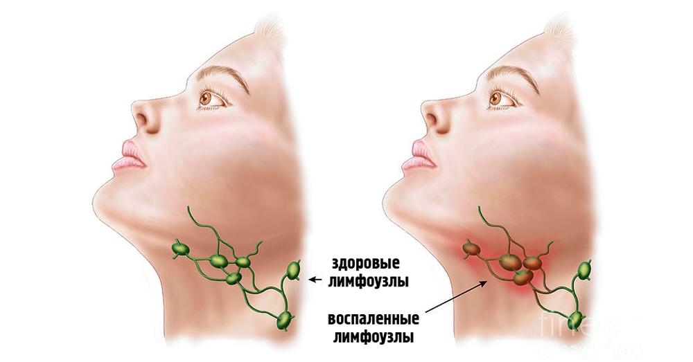 О чем сигнализируют воспаленные лимфоузлы