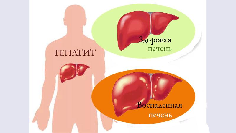 Что представляет собой хронический гепатит B