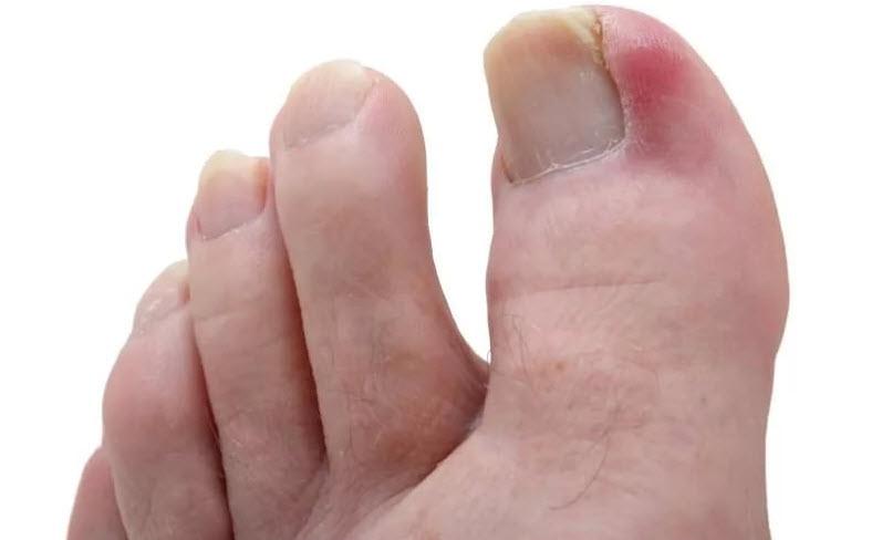 Гноится вросший ноготь на ноге как лечить