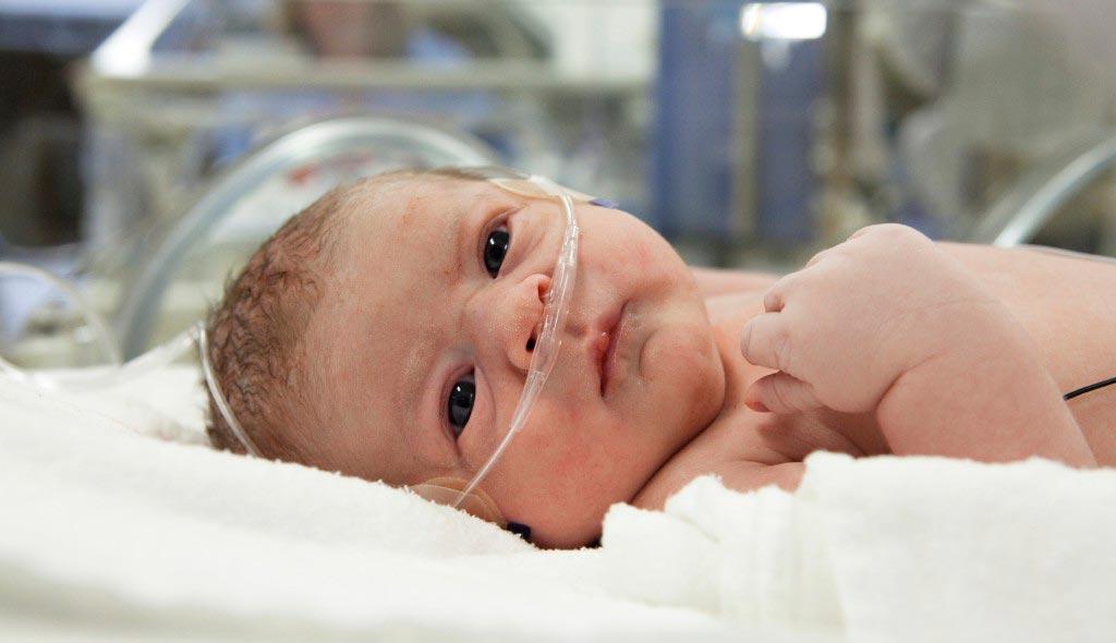 Асфиксия у новорожденных  - причины возникнвения и лечение