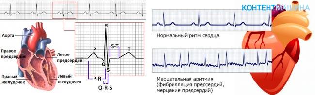 Аритмия левого желудочка сердца
