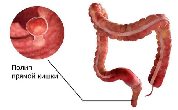 полип в кишечнике