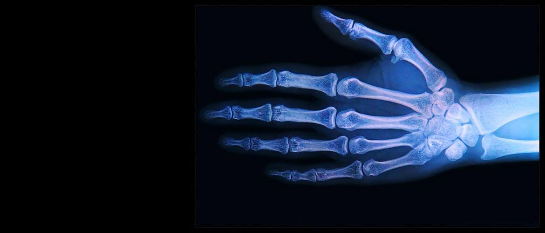 Что такое остеомиелит, симптомы и лечение