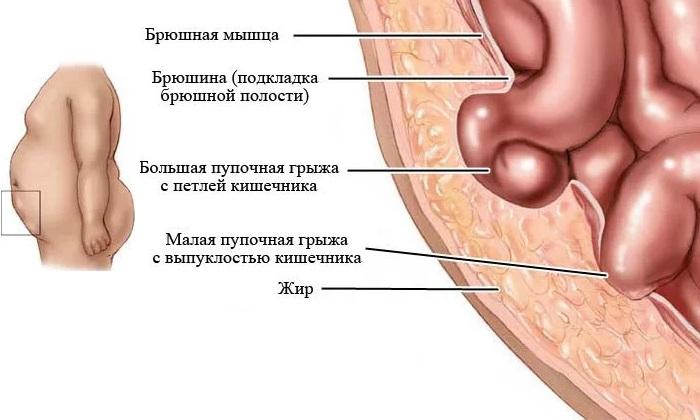 Грыжа брюшной полости - симптомы, осложнения и лечение